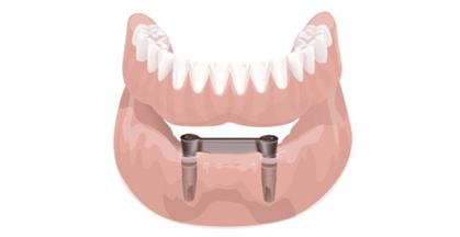 Implante Overdenture Inferior
